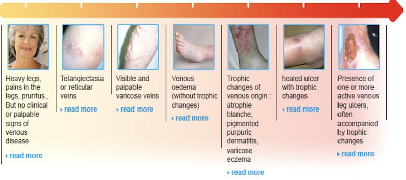L'ipertensione venosa - Centro Medico Ippocrate, Vein Clinic